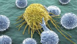 shows cancer cells and the body's defensive T-cells