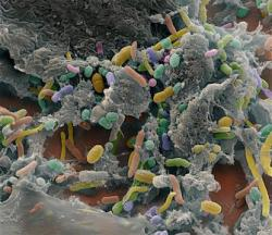 intestinal bacteria of many colours, shapes and sizes